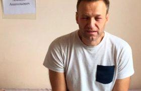 Почему Навальный публично не благодарит врачей? И где он сейчас